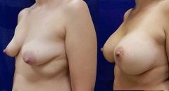 breastlift-5