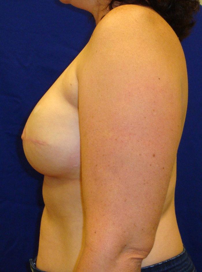 Breast Reconstrucion Patient