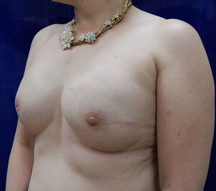 Breast Reconstrucion Patient