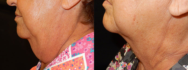 Coolsculpting Patient Before & After