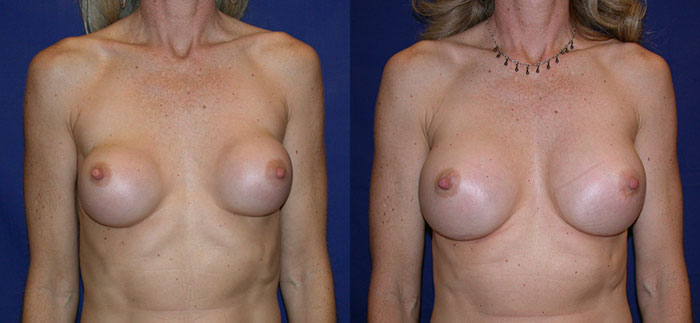 breastimplantreplacement-22218-front
