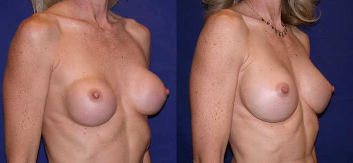 breastimplantreplacement-22218-obll