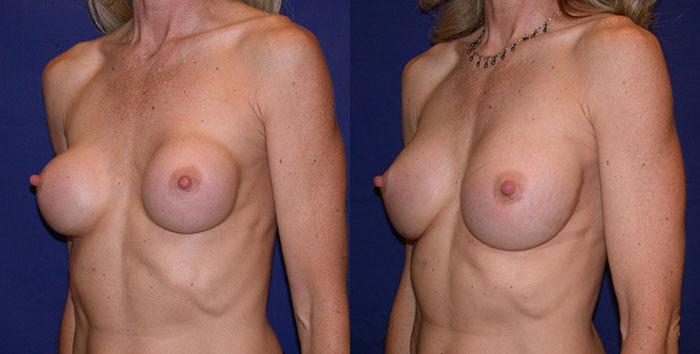 breastimplantreplacement-22218-oblr