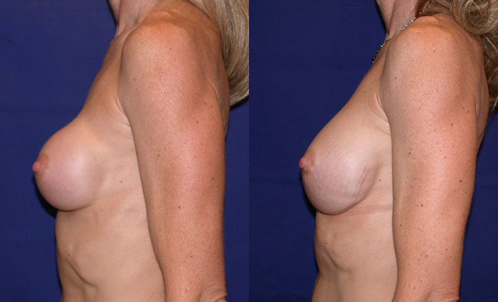 breastimplantreplacement-22218-sidel