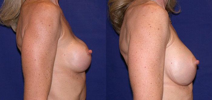 breastimplantreplacement-22218-sider